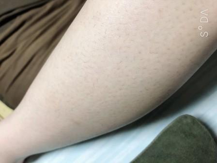 ストラッシュ脱毛(足)8回目の効果・状態