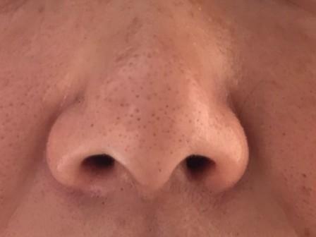 小鼻脱毛(小鼻の毛穴の脱毛)